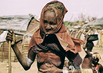 Dolor de muelas | Poblado de la etnia Dassanech, Valle del Río Omo, Etiopía (10 de junio de 2016) | © Loreto Paredes Castro